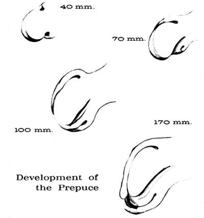 Development of the Prepuce (After Spalding, Deibert and Hunter)