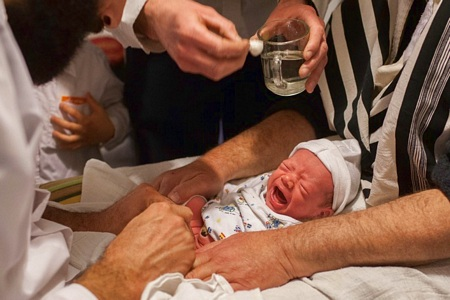 Image result for infant bloody circumcision