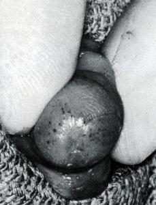 Meatal Stenosis