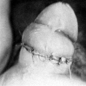 Repair of concealed penis